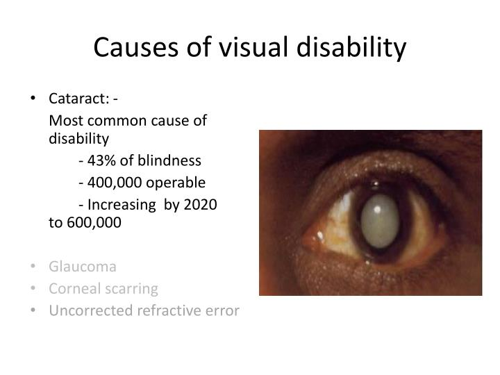 Causes of visual disability