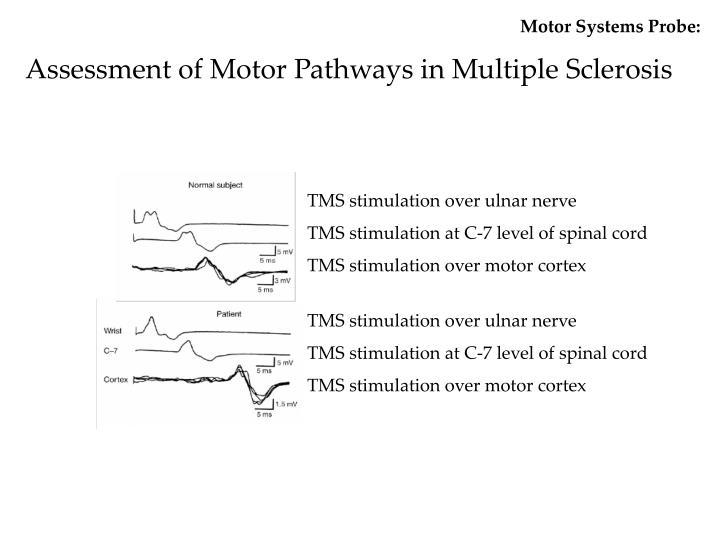 Motor Systems Probe: