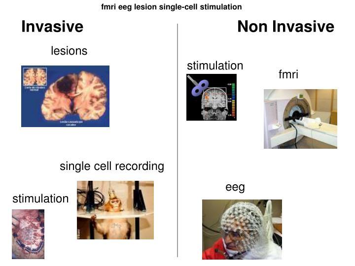 fmri eeg lesion single-cell stimulation