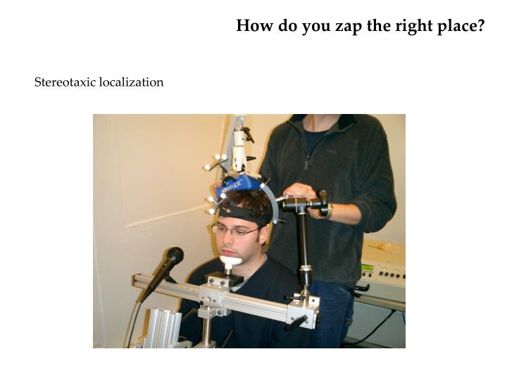 How do you zap the right place?
