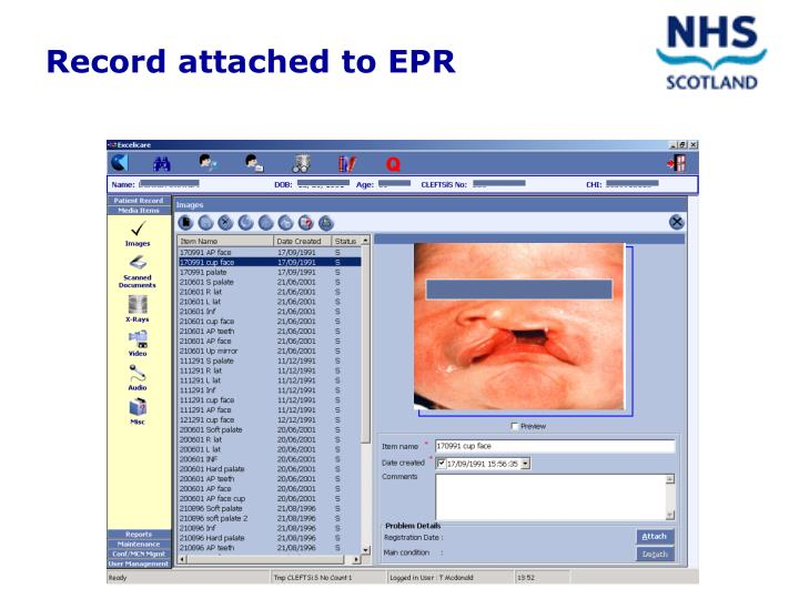 Record attached to EPR