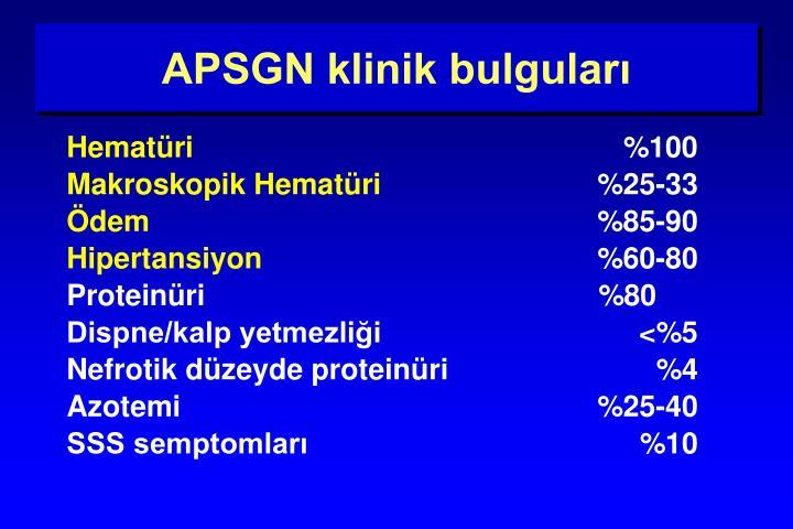 APSGN klinik bulguları