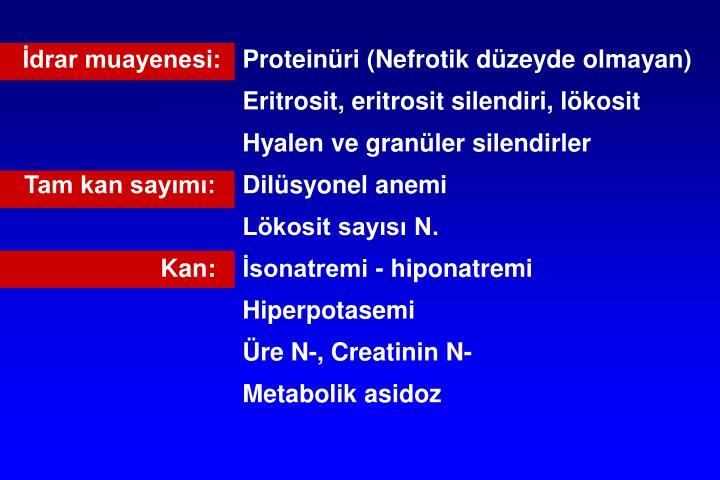 İdrar muayenesi:Proteinüri (Nefrotik düzeyde olmayan)