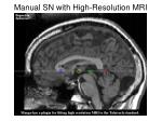 manual sn with high resolution mri