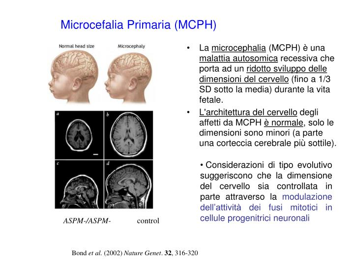 Microcefalia Primaria (MCPH)