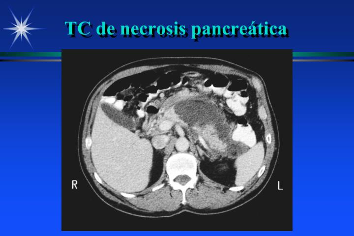 TC de necrosis pancreática