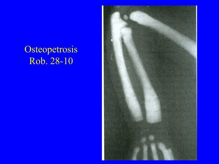 Osteopetrosis Rob. 28-10