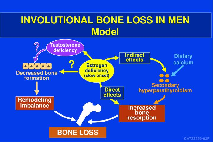 INVOLUTIONAL BONE LOSS IN MEN