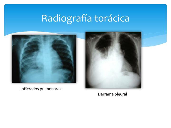 Radiografía torácica