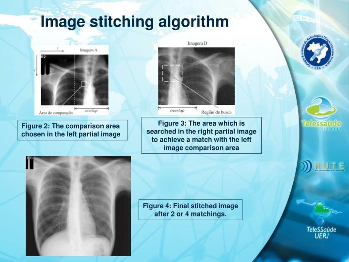 Image stitching algorithm