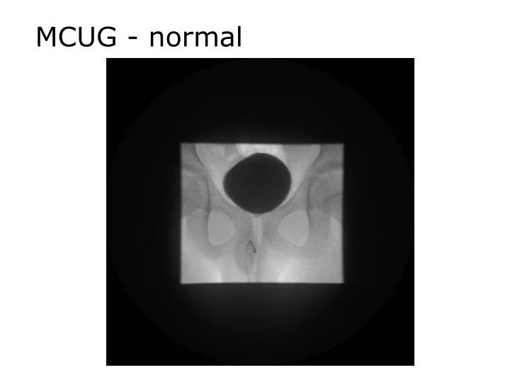 MCUG - normal