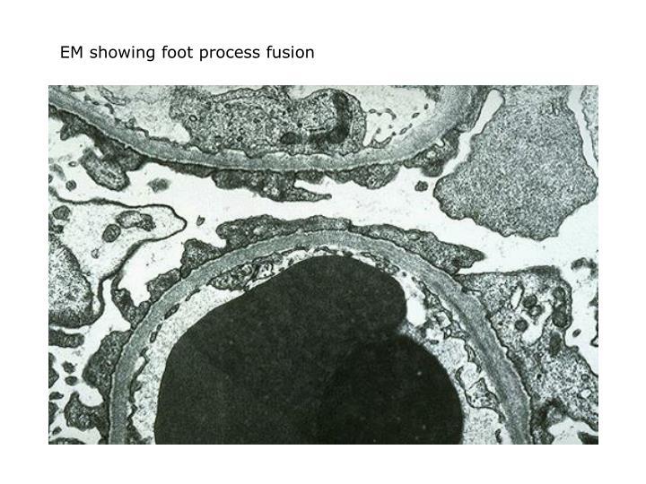 EM showing foot process fusion
