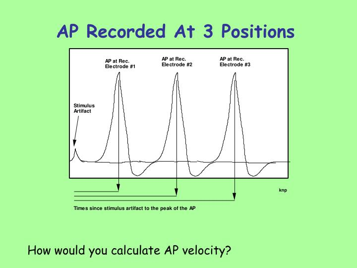 Ap recorded at 3 positions