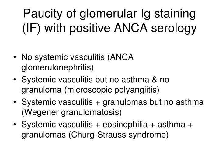 Paucity of glomerular Ig staining (IF) with positive ANCA serology