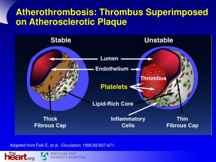 Atherothrombosis: Thrombus Superimposed on Atherosclerotic Plaque