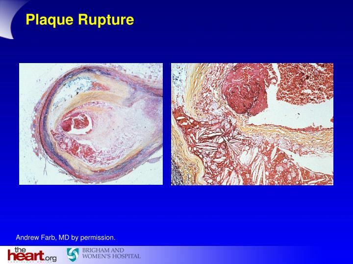 Plaque Rupture