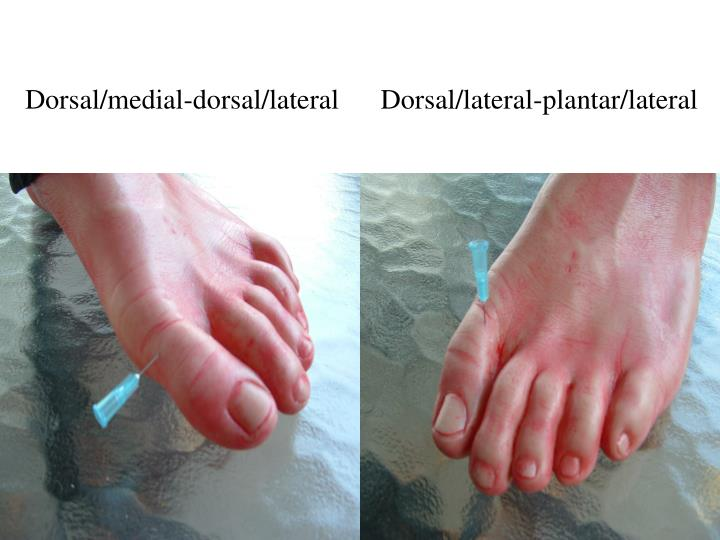 Dorsal/medial-dorsal/lateral      Dorsal/lateral-plantar/lateral
