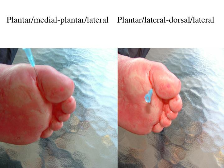 Plantar/medial-plantar/lateral    Plantar/lateral-dorsal/lateral