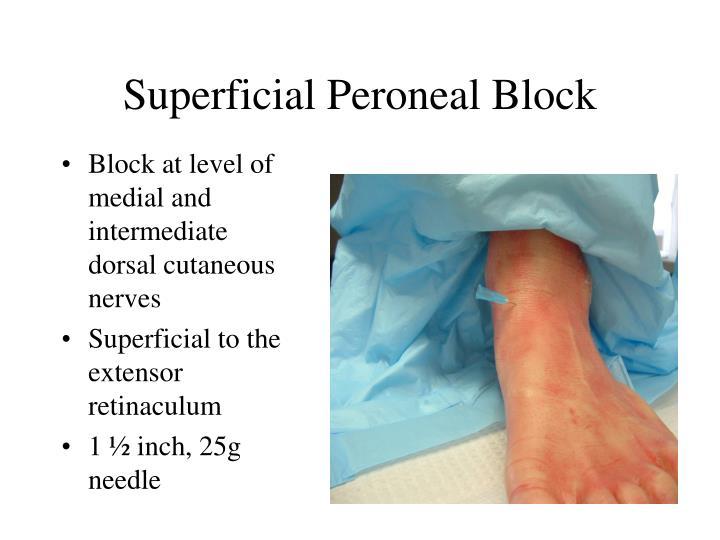 Superficial Peroneal Block