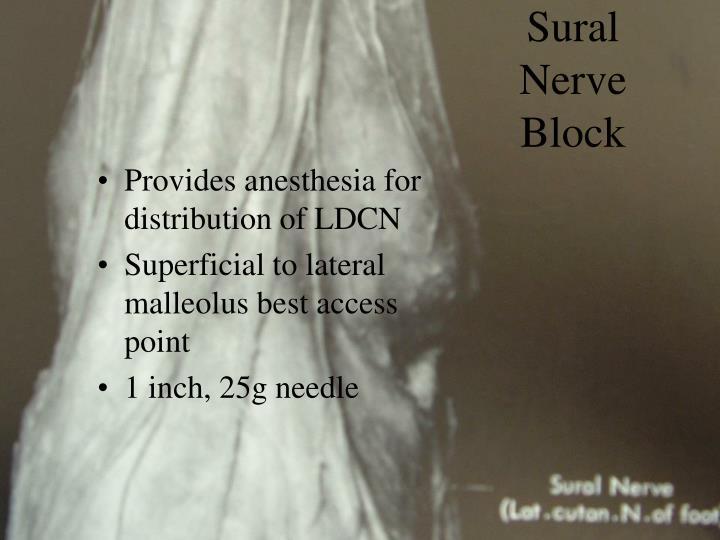 Sural Nerve Block