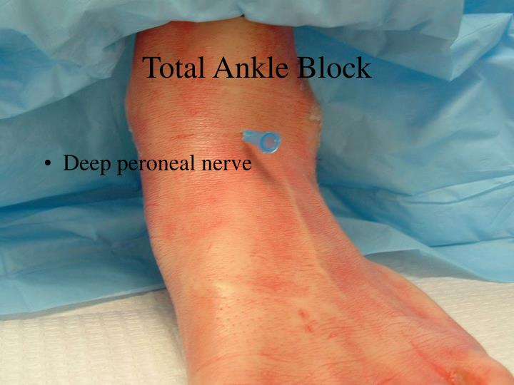 Total Ankle Block