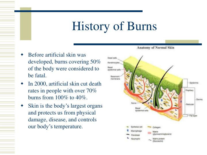 History of burns