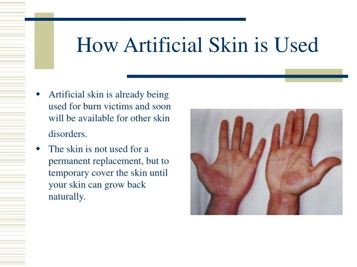 How Artificial Skin is Used
