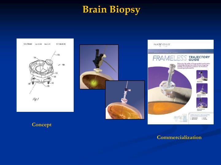Brain Biopsy