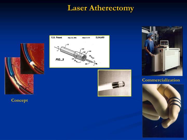 Laser Atherectomy