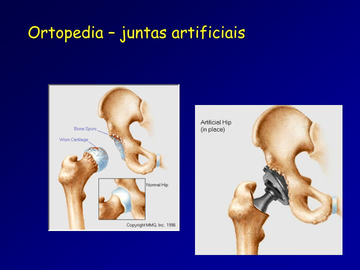 Ortopedia – juntas artificiais