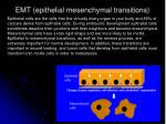 emt epithelial mesenchymal transitions