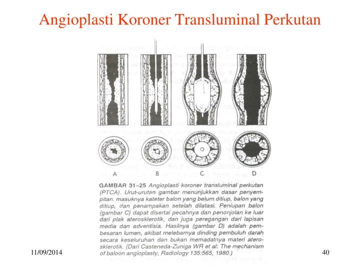 Angioplasti Koroner Transluminal Perkutan