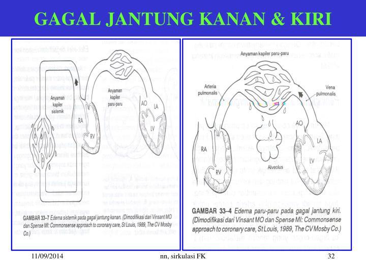 GAGAL JANTUNG KANAN & KIRI