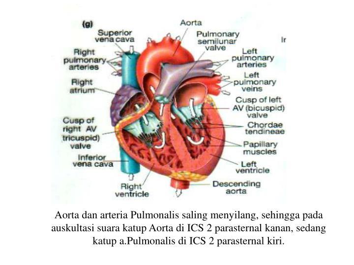 Aorta dan arteria Pulmonalis saling menyilang, sehingga pada auskultasi suara katup Aorta di ICS 2 parasternal kanan, sedang katup a.Pulmonalis di ICS 2 parasternal kiri.