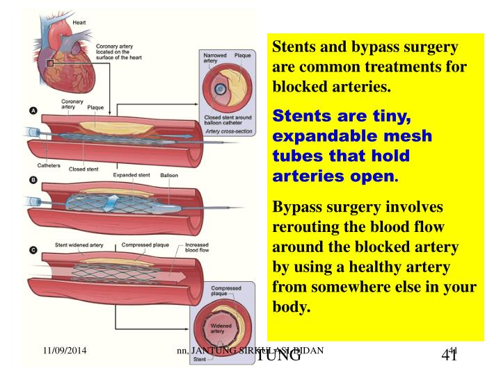 Stents and bypass surgery are common treatments for blocked arteries.