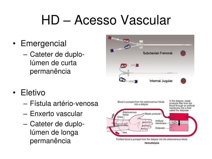 HD – Acesso Vascular