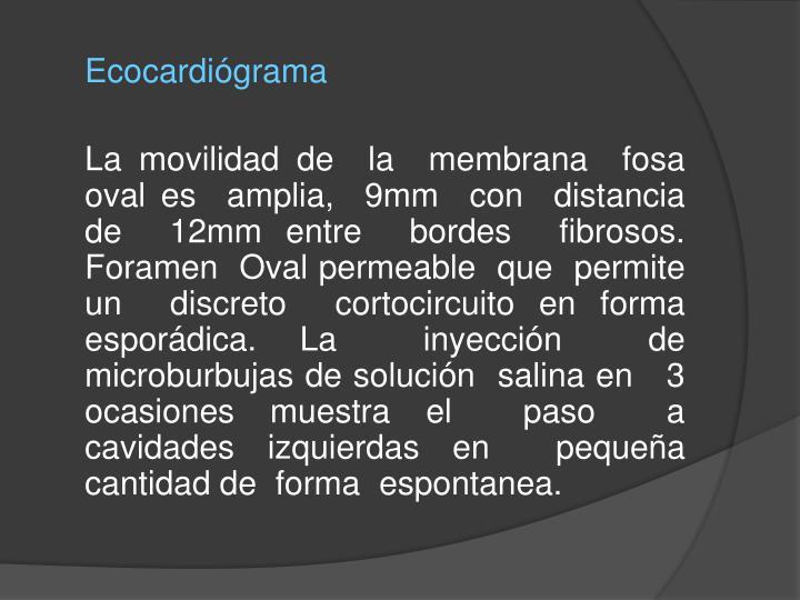 Ecocardiógrama