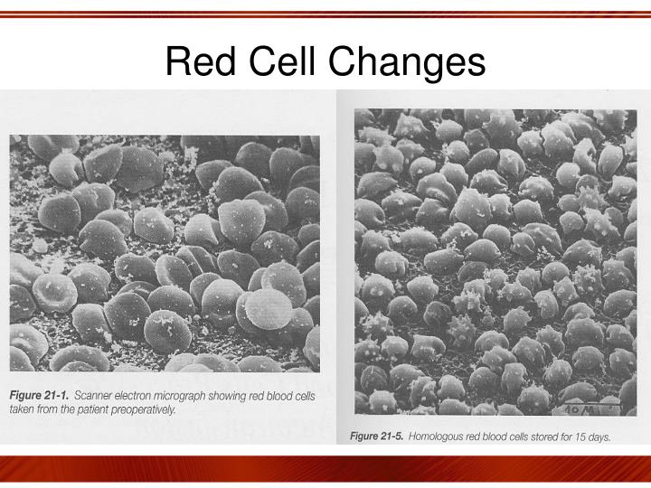 Red Cell Changes