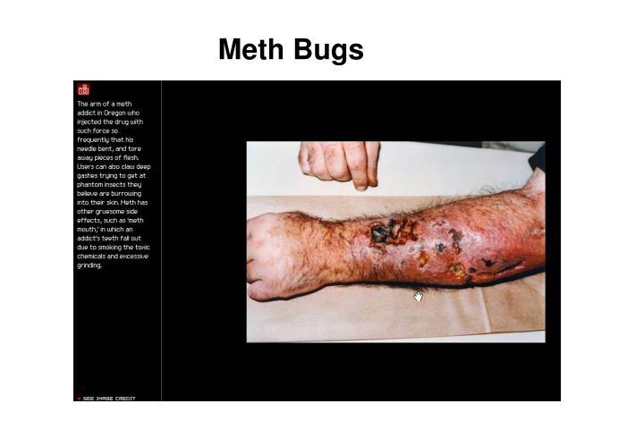 Meth Bugs
