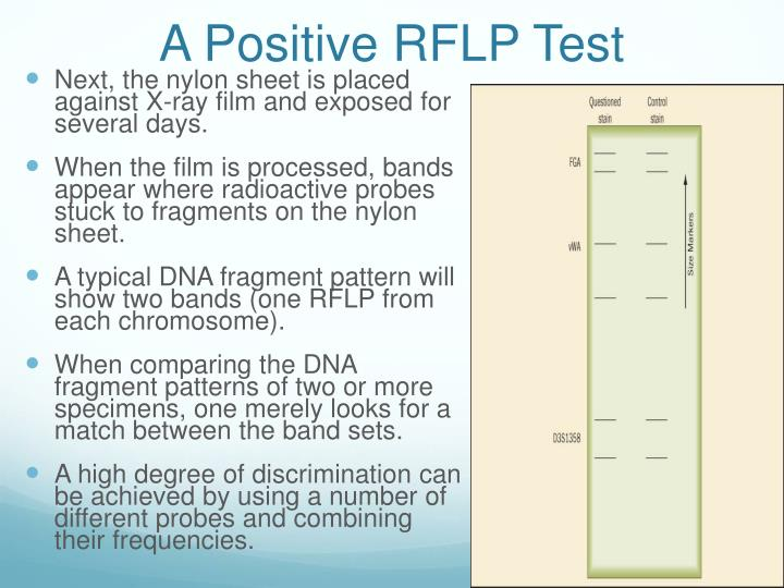 A Positive RFLP Test