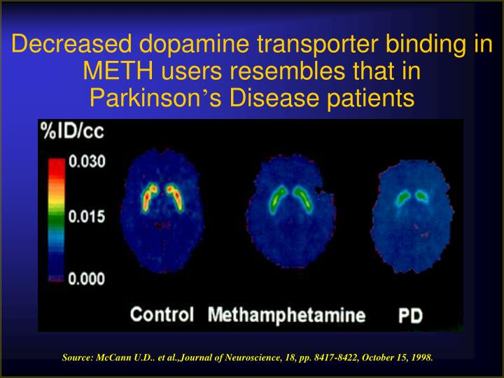 Decreased dopamine transporter binding in METH users resembles that in