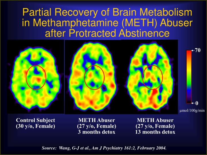 Partial Recovery of Brain Metabolism