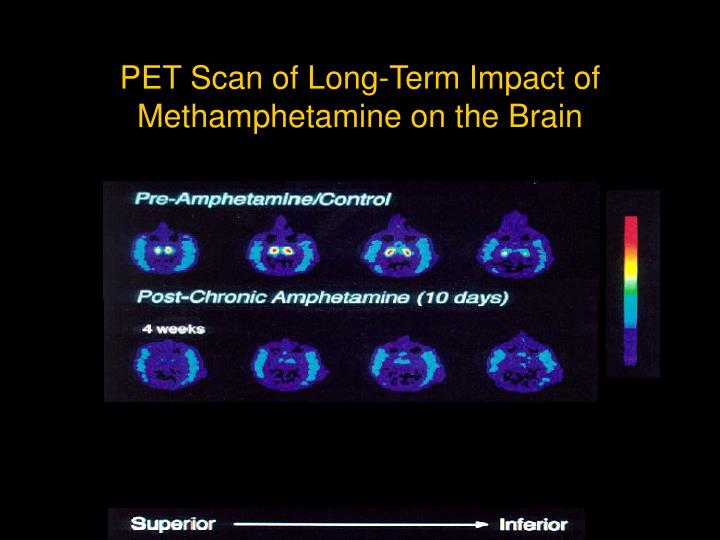 PET Scan of Long-Term Impact of Methamphetamine on the Brain