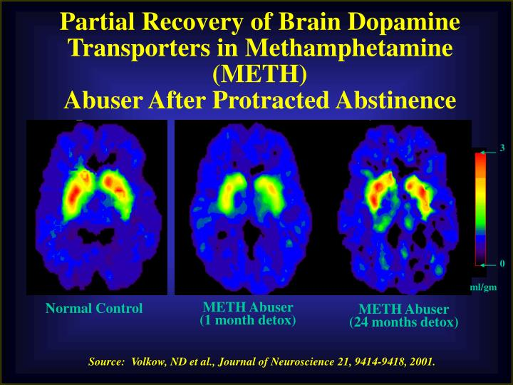 Partial Recovery of Brain Dopamine Transporters in Methamphetamine (METH)