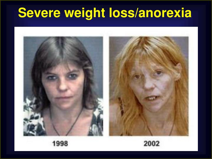 Severe weight loss/anorexia