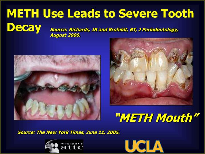 METH Use Leads to Severe Tooth Decay
