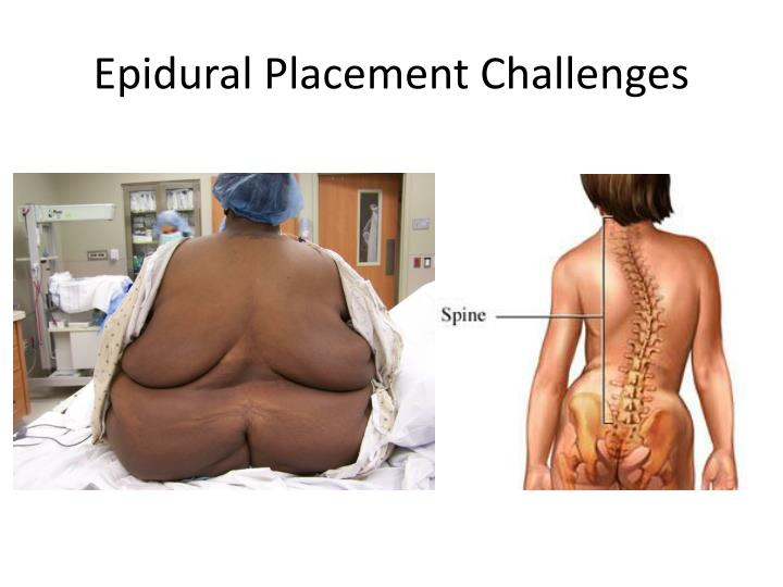 Epidural Placement Challenges