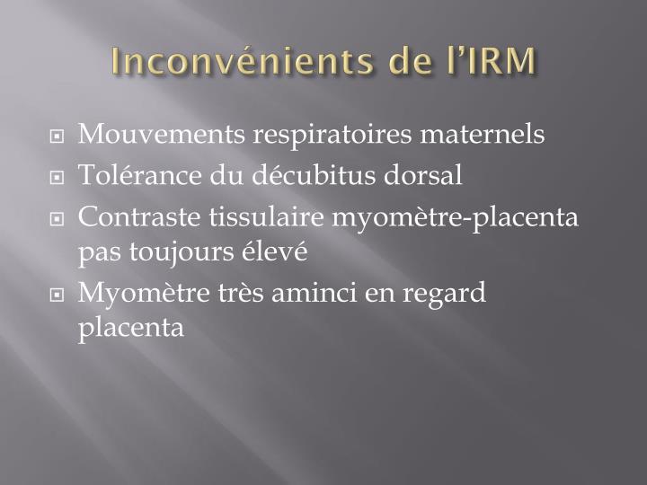 Inconvénients de l'IRM