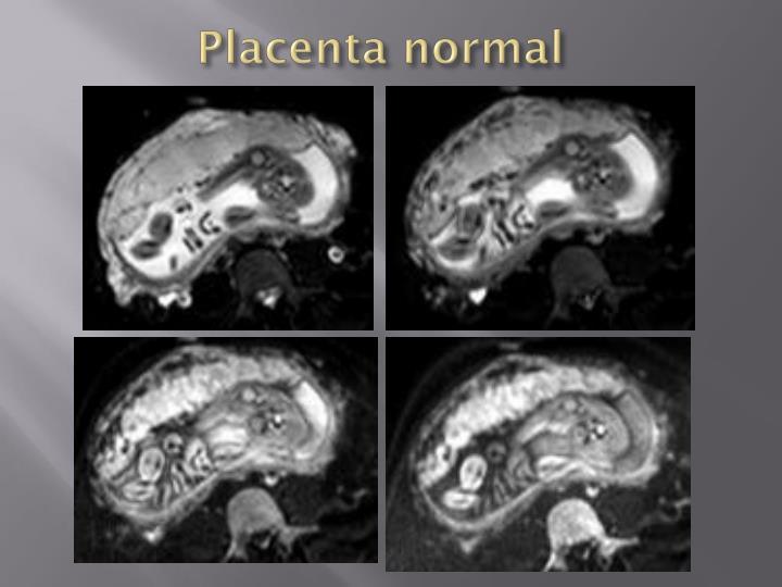 Placenta normal