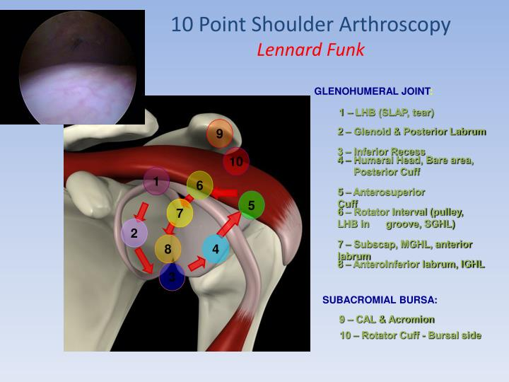 PPT - Shoulder arthroscopy PowerPoint Presentation - ID:4270378